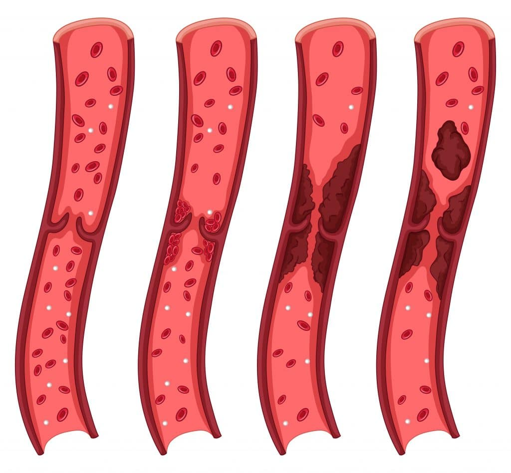 Krvná zrazenina je zhluk krvi gélovej až polotuhej konzistencie.